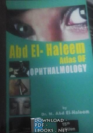 ❞ كتاب Summary Of OPHTHALMOLOGY P2 Book ❝  ⏤ عبد الحليم (دكتور)