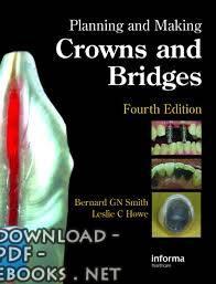 ❞ كتاب Planning and Making Crowns and Bridges ❝